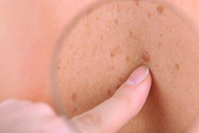 Melanoma tumors may often either originate within an existing mole or develop their own lesions that look like moles.