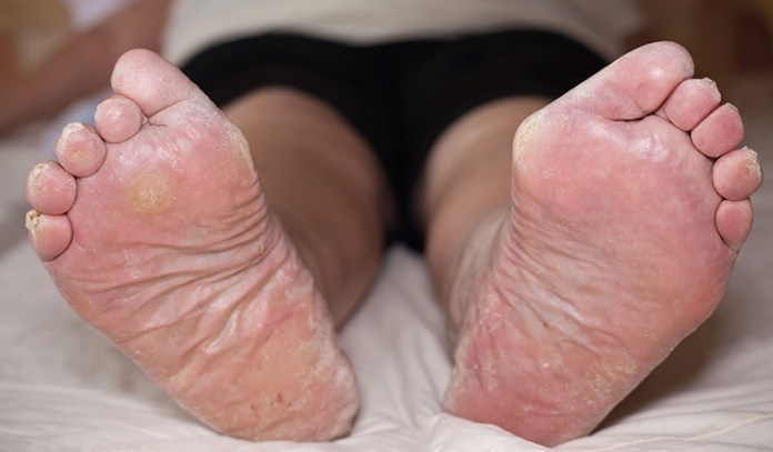 Swelling in the legs, ankles, or feet may be a symptom of a heart attack