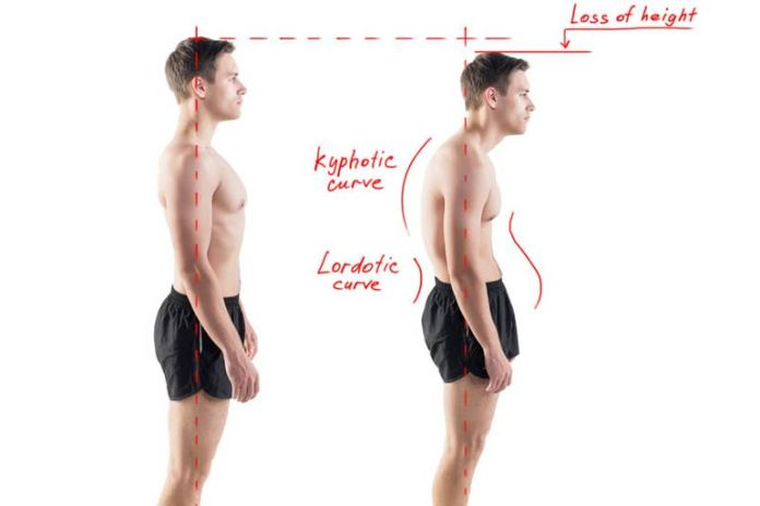 the importance of correct posture