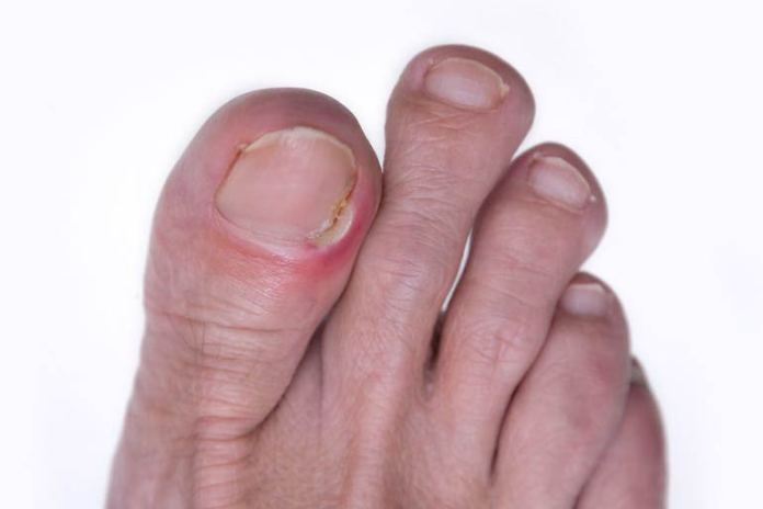 Ingrown toenail can be removed by soaking in vinegar water