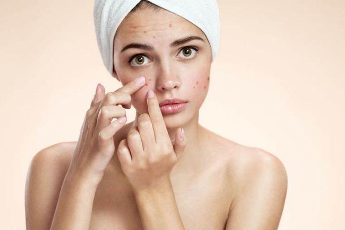 Clear acne by applying VapoRub.