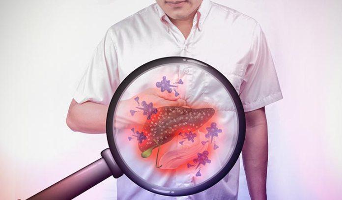 cirrhosis is a complication of hepatitis