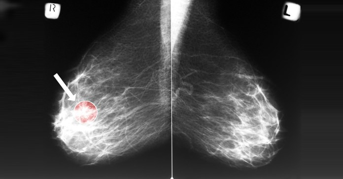 Breast cancer can come back at anytime