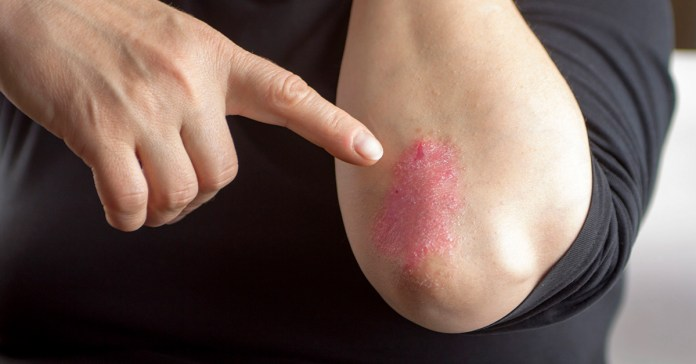 9 Simple Strategies To Prevent Psoriasis Flare-Ups