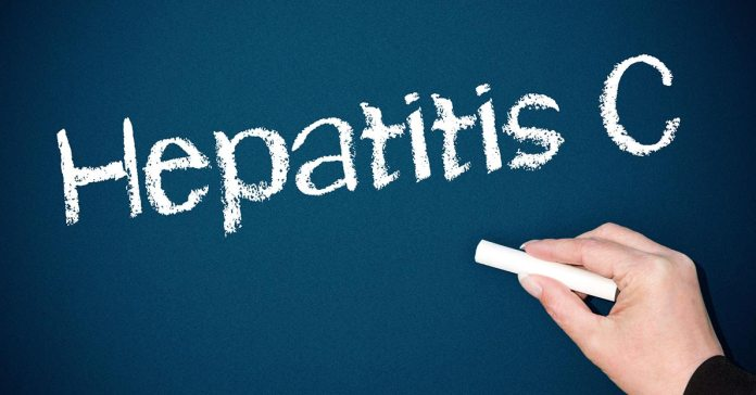 causes, symptoms, and management of hepatitis C