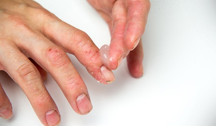 Eczema can be due to different reasons, including stress