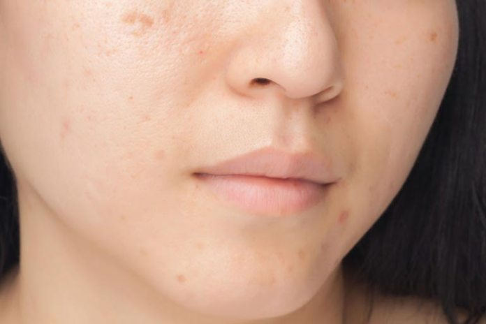 Shiny skin indicates that your cleanser isn't made for oily skin