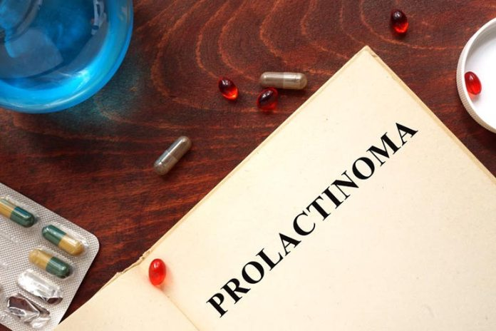 Prolactinoma can cause weight gain