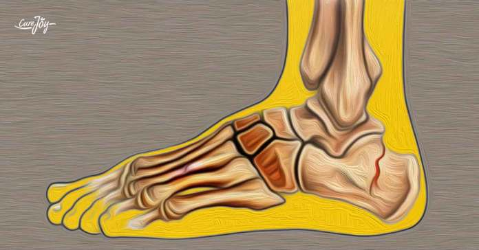 symptoms of a stress fracture