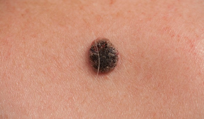 The ABCDE test can help in detecting skin cancer.