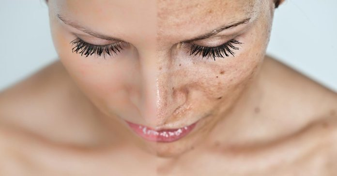 Certain skin problems bring hormonal imbalance and lead to depression