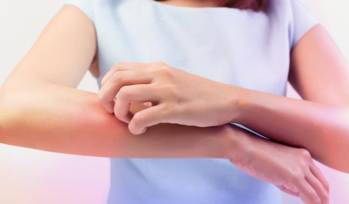 Tick and mosquito bites can cause hives