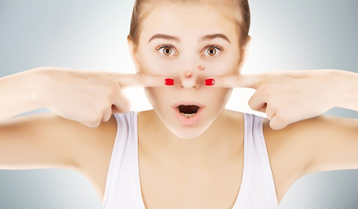 Excess sebum production may cause acne flare-ups in the T-zone
