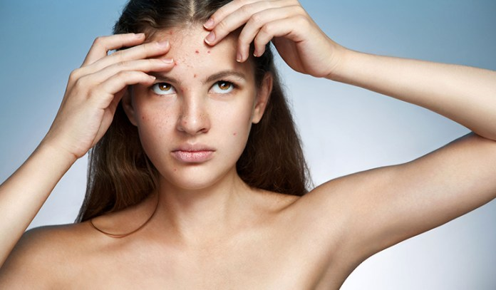 Digestive problems could result in acne on the forehead
