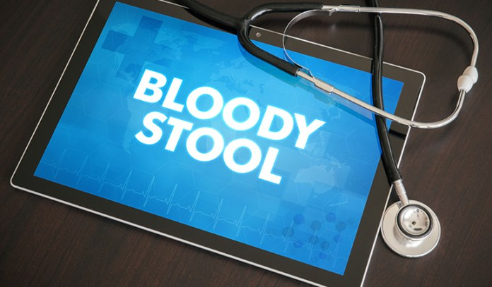Strangulated obstruction of the intestine causes bloody stool.