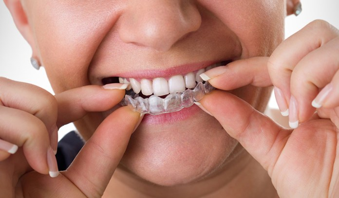 Clear Aligners Are Made From Medical Grade Plastic