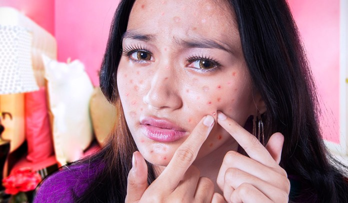 Turmeric is an anti-microbial and thus kills pimple causing bacteria