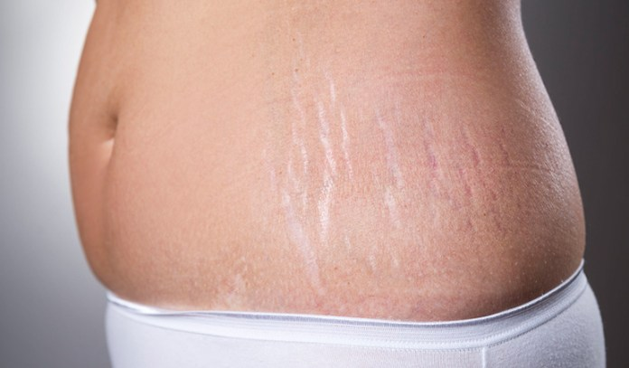Turmeric can also help reduce stretch marks