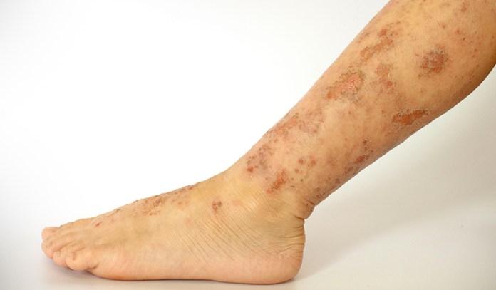 Antibiotic treatment don't relieve eczema.