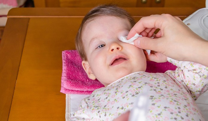 Use sterilized water and clean cotton wool to wipe the discharge off your baby's eyes.
