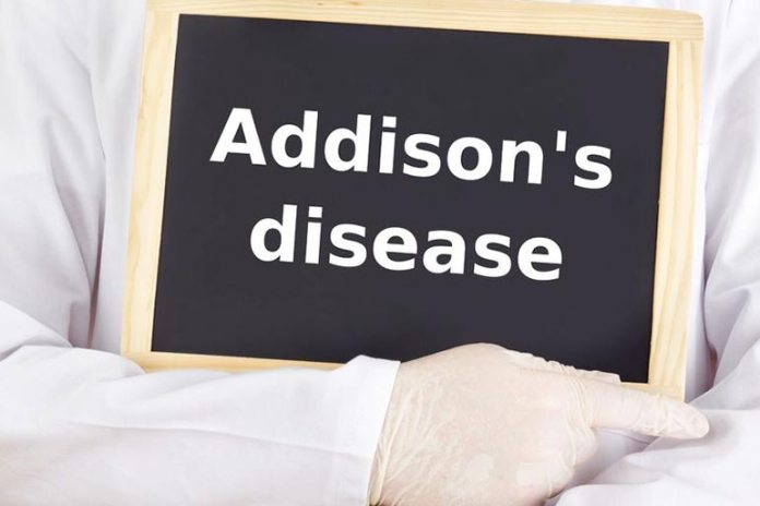 Dark spots on the tongue are a major symptom of Addison's disease