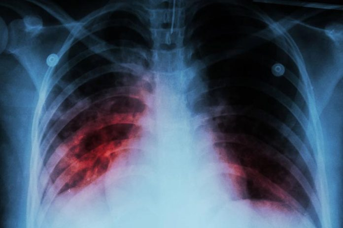 Tuberculosis damages the adrenal glands and causes dark spots on the tongue