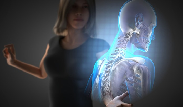 Low estrogen levels cause osteoporosis