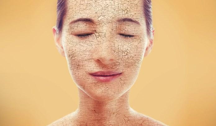 Anti-acne antibiotics can cause dryness and peeling.