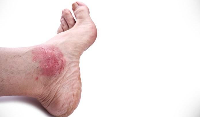 Curcumin has anti-inflammatory powers