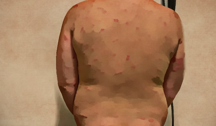 Symptoms Of Swimmer's Itch: rashes, pimples, and blisters