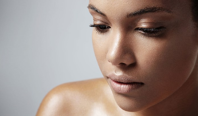 Water-based moisturizers aren't greasy and prevent flare-ups.