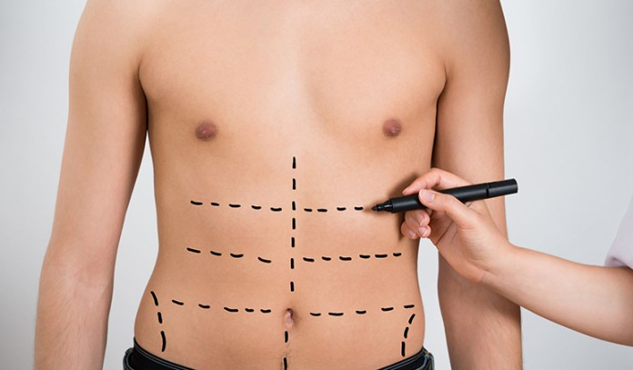 It is impossible to get a 6 pack if your abdominal wall is not genetically built for one.