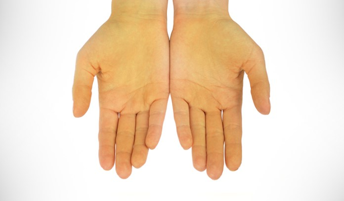 Yellowish skin may be caused by anemia or jaundice, both of which are caused by low vitamin B12.