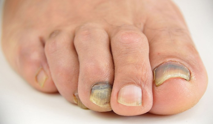 Blue nails may be a sign of a weak heart that's unable to pump out enough oxygen-rich blood.