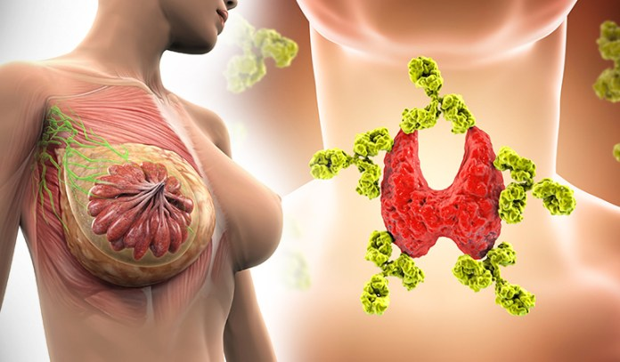 Thyroid pills increase breast cancer risk.
