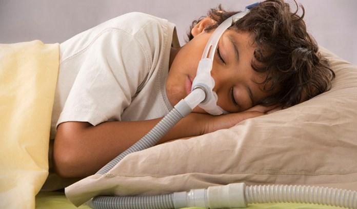 Sleep apnea affects memory.