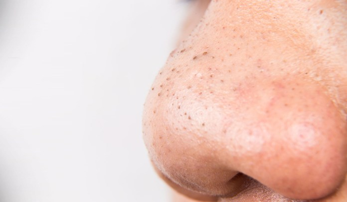 blackheads can be removed by scrubbing bath salts on the skin