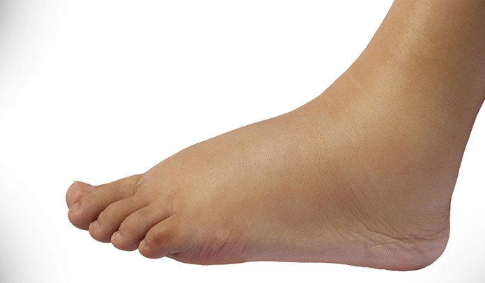 Swollen legs and feet may be a sign of a faulty heart valve that refuses to close properly.