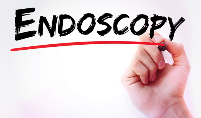 Doctors use a procedure called endoscopy to confirm ulcerative colitis