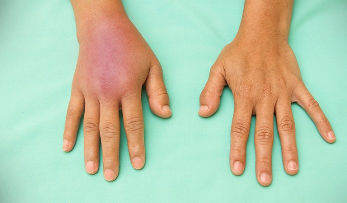 Bruises are acute soft tissue injuries.
