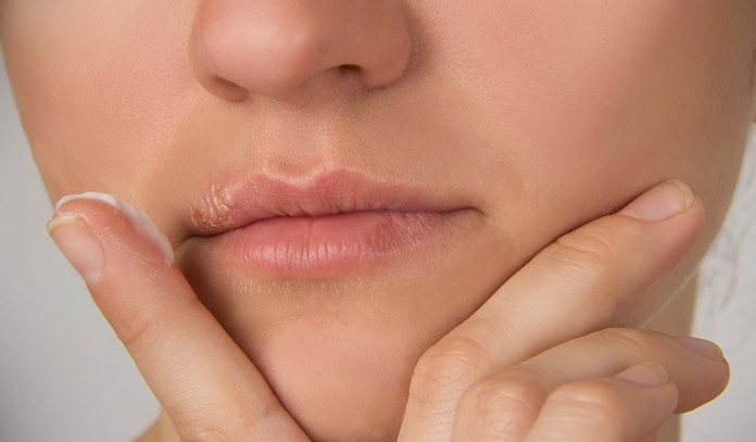 there are medicines available to calm the symptoms of cold sores