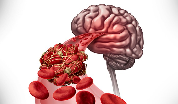 A stroke is caused when the oxygen supply to the brain gets cut off.