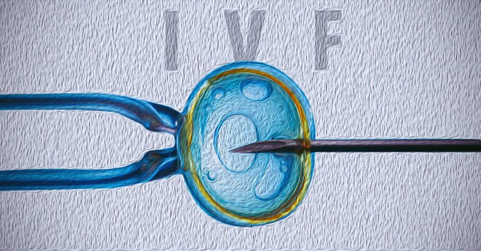 Side effects of IVF treatment include multiple pregnancies.