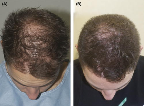 Platelet-rich plasma (PRP) for male pattern hair loss