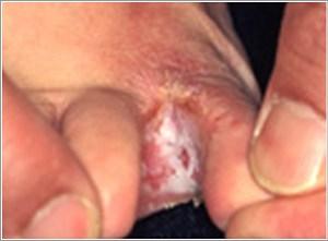 足指の間の水虫