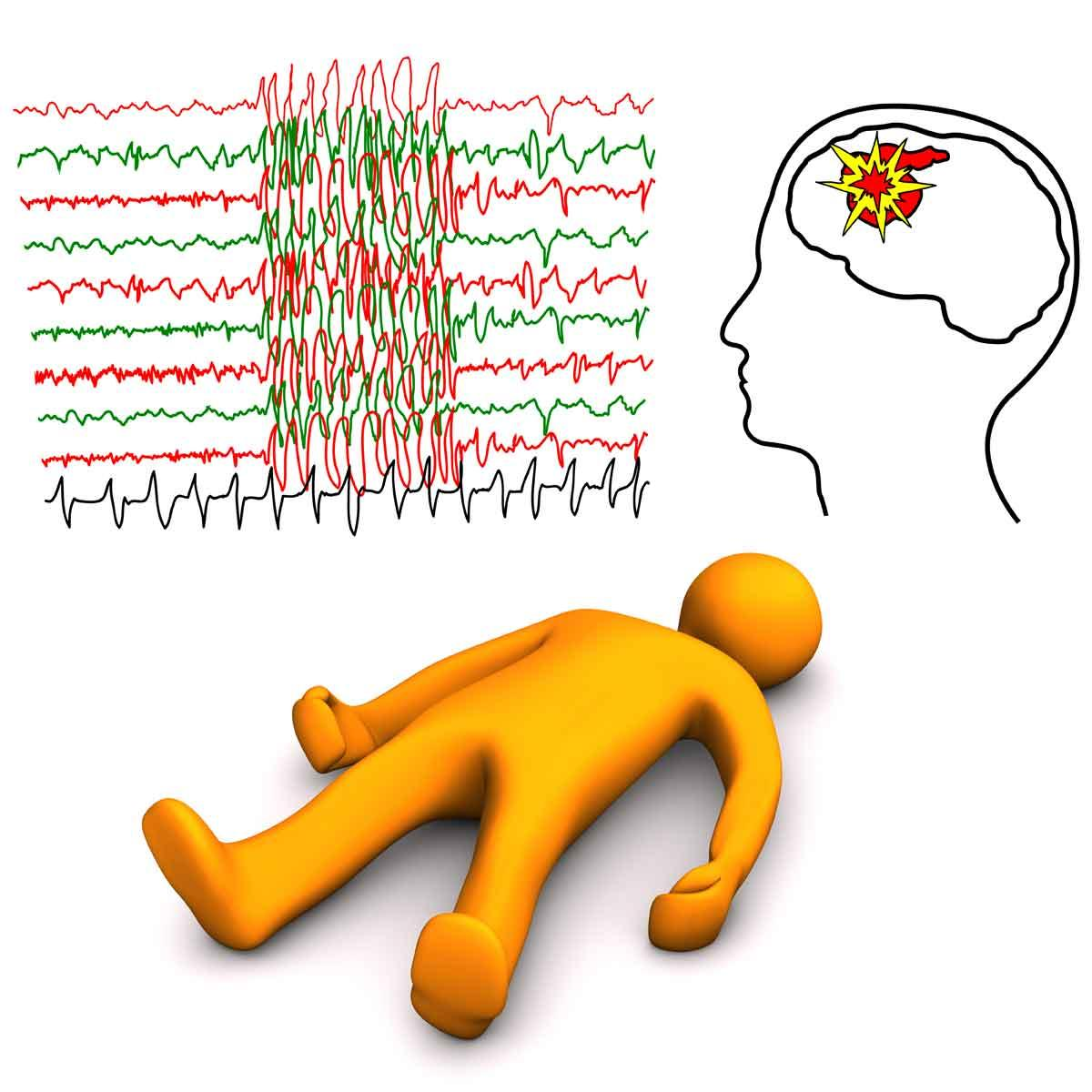 Risk Factors for Developing Epilepsy