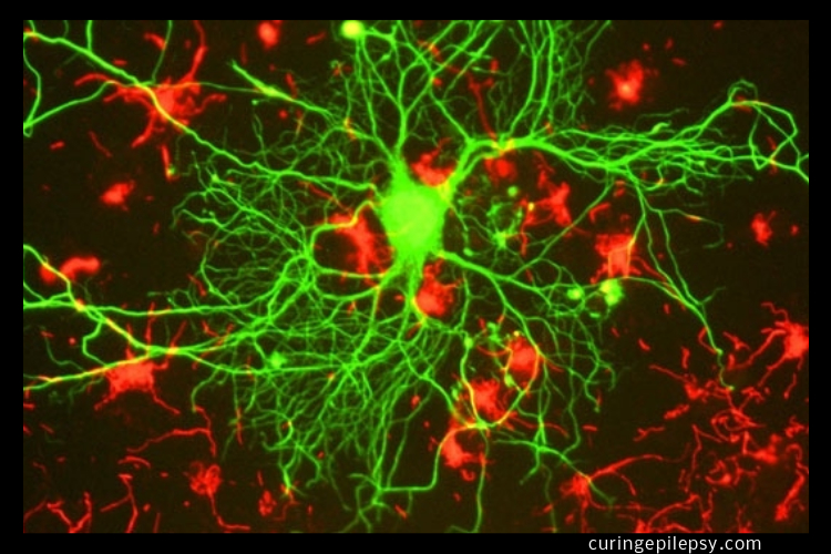 Seizures Stopped and Cognitive Function Improved Using Stem Cell-Derived Neurons