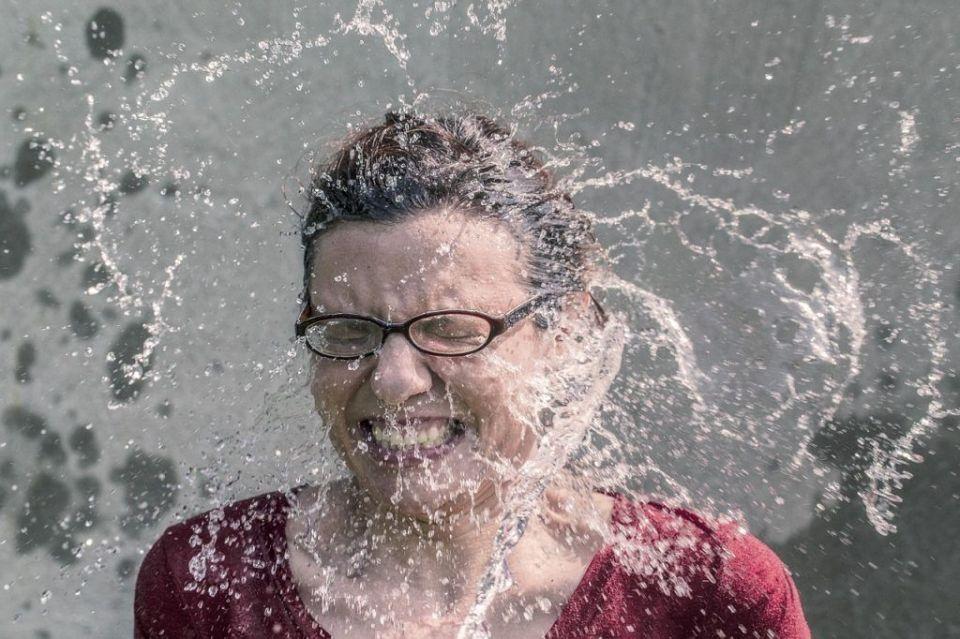 Alergia al agua