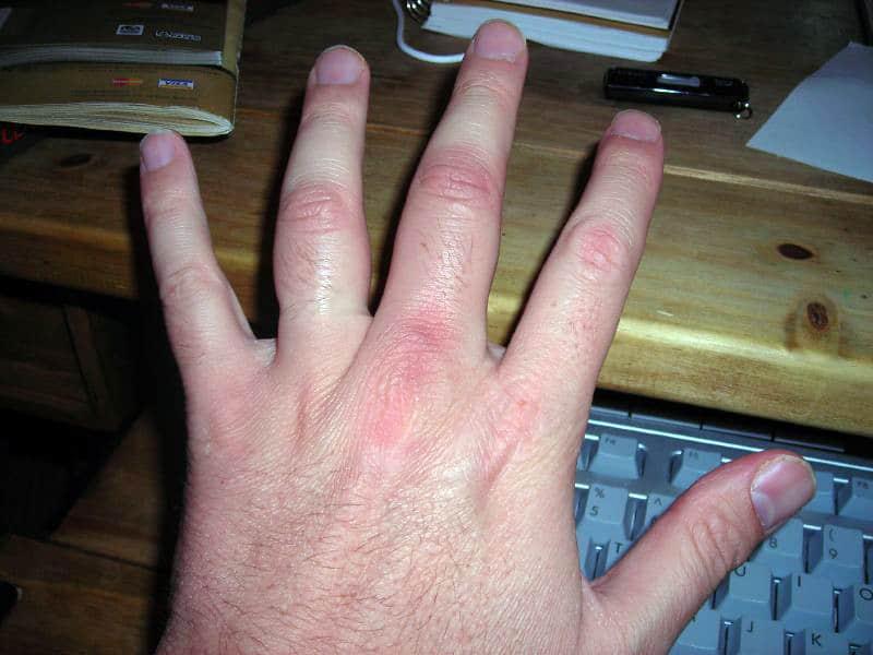 ¿Cómo bajar la inflamación de un dedo? – Curiosoando
