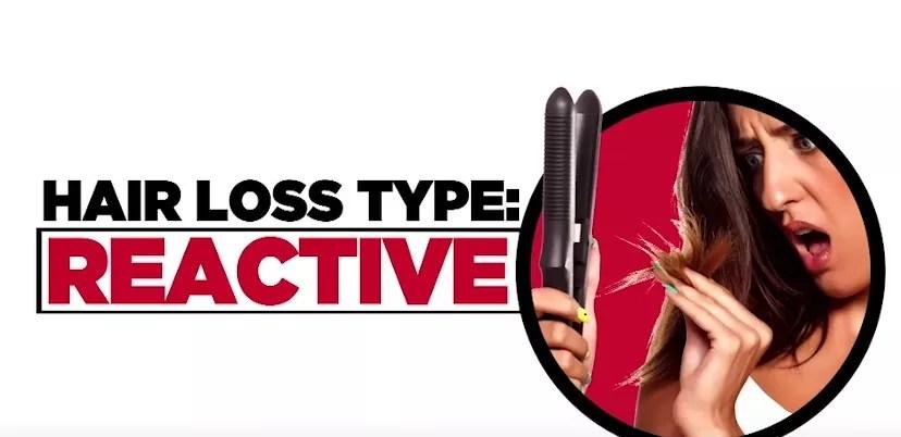 hair loss Types